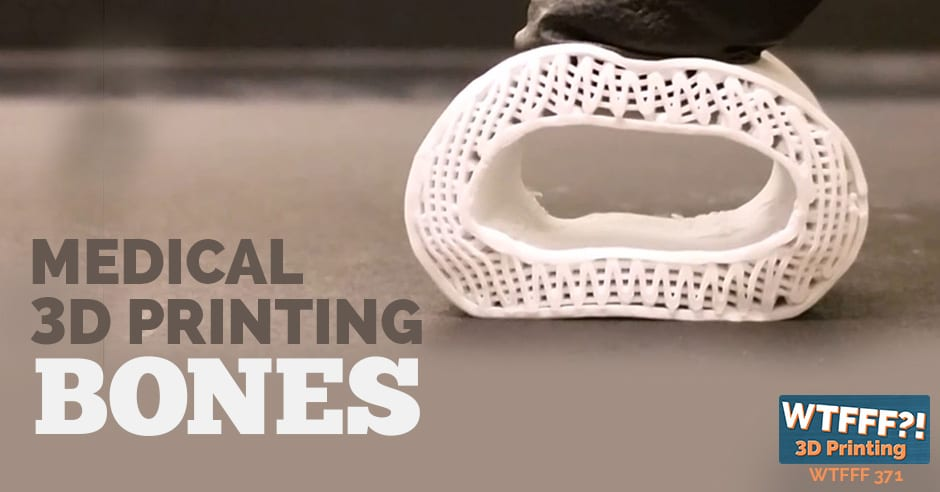 WTFFF 371 | Medical 3D Printing Bones