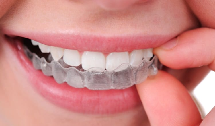 Invisalign 3D-printed braces, one of the most well-known 3D printing medical devices
